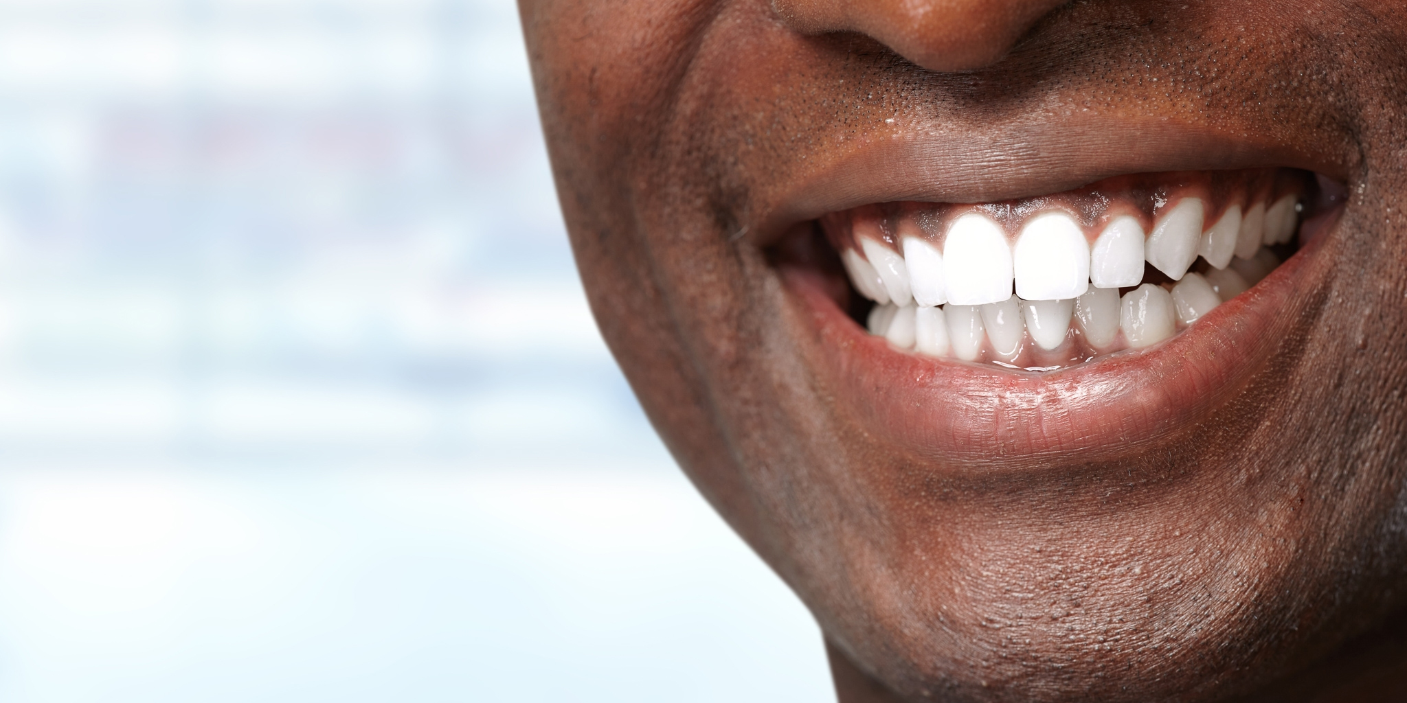 Man smiling with newly cleaned white teeth